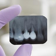 צילומי שיניים